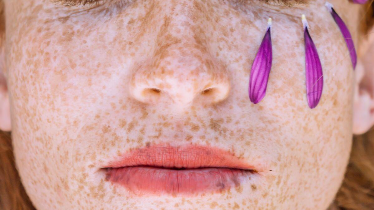 Lippe knutschfleck tun an der was gegen Was tun