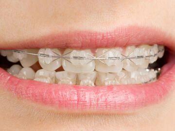 Tut eine feste zahnspange weh